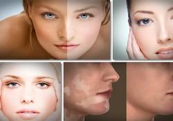 Vitiligo Hastalığı
